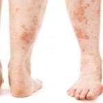 بیماریهای پوستی دیابتیها