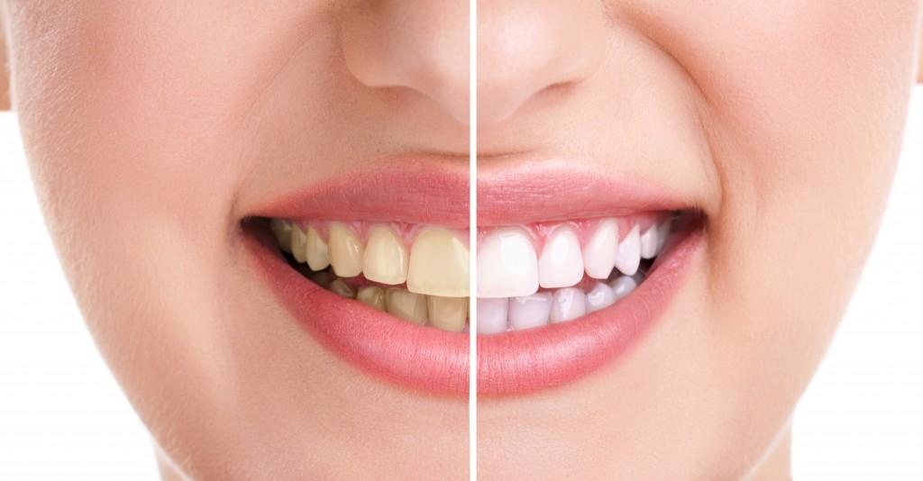 76 1024x534 درمان خانگی برای زردی دندانها